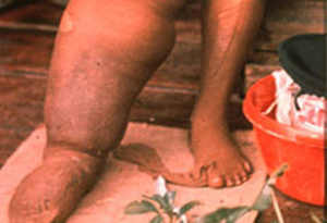 FA_Parasitology_Fig2_Elephantiasis